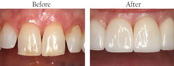 Danville Before and After Dental Implants