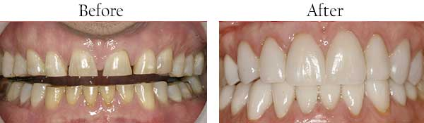 Brownsburg Before and After Invisalign