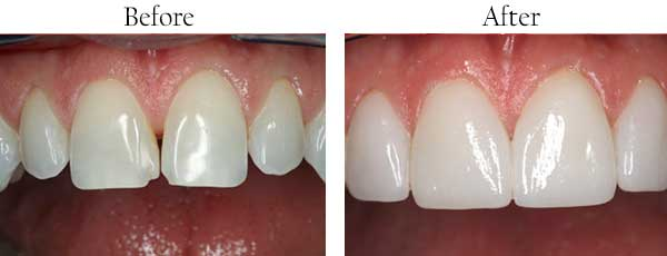 Avon Before and After Teeth Whitening